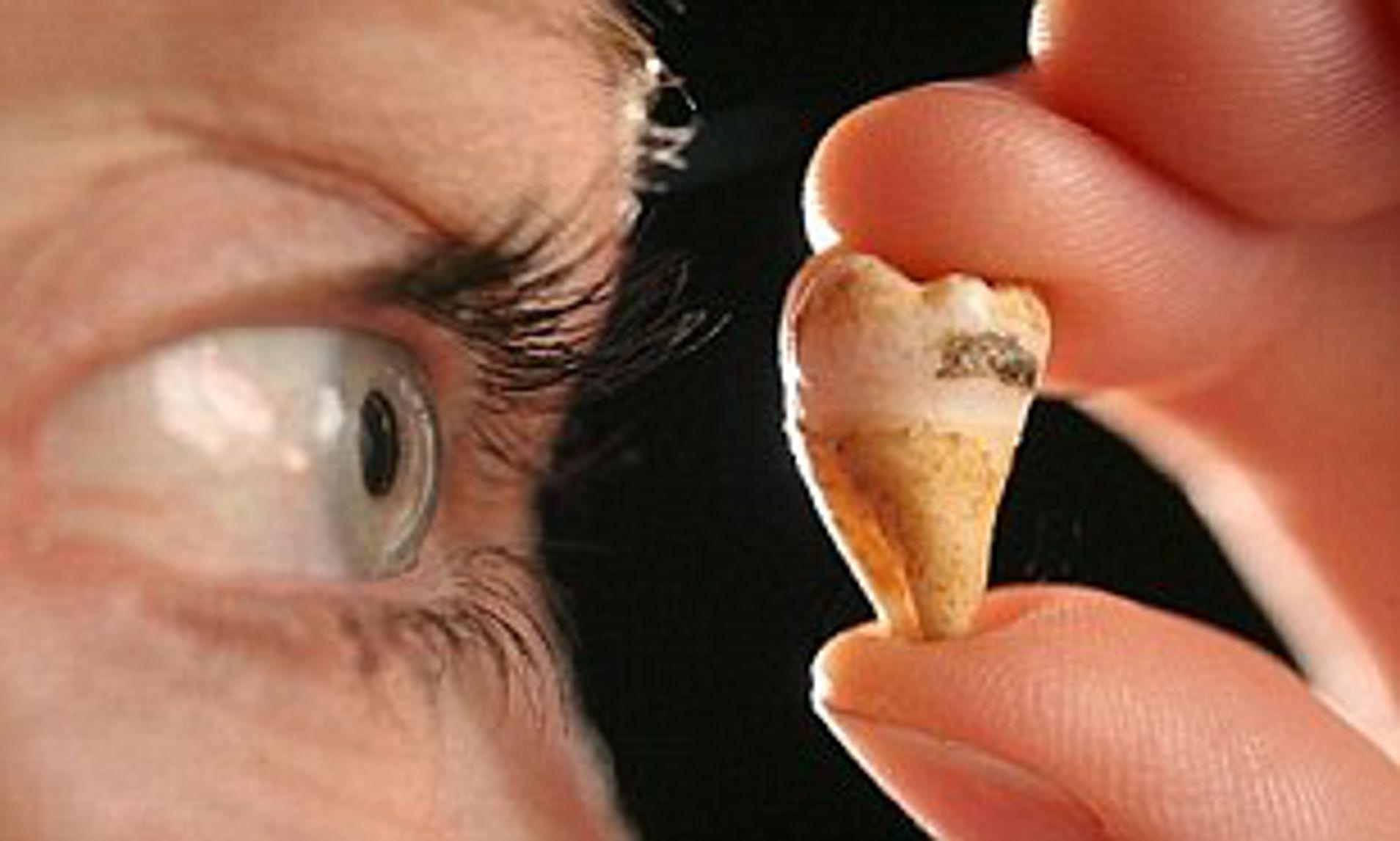 В будущем люди получат возможность вырастить утраченные зубы